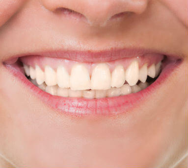 Blanqueamiento dental antes
