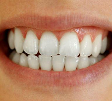 Blanqueamiento dental después
