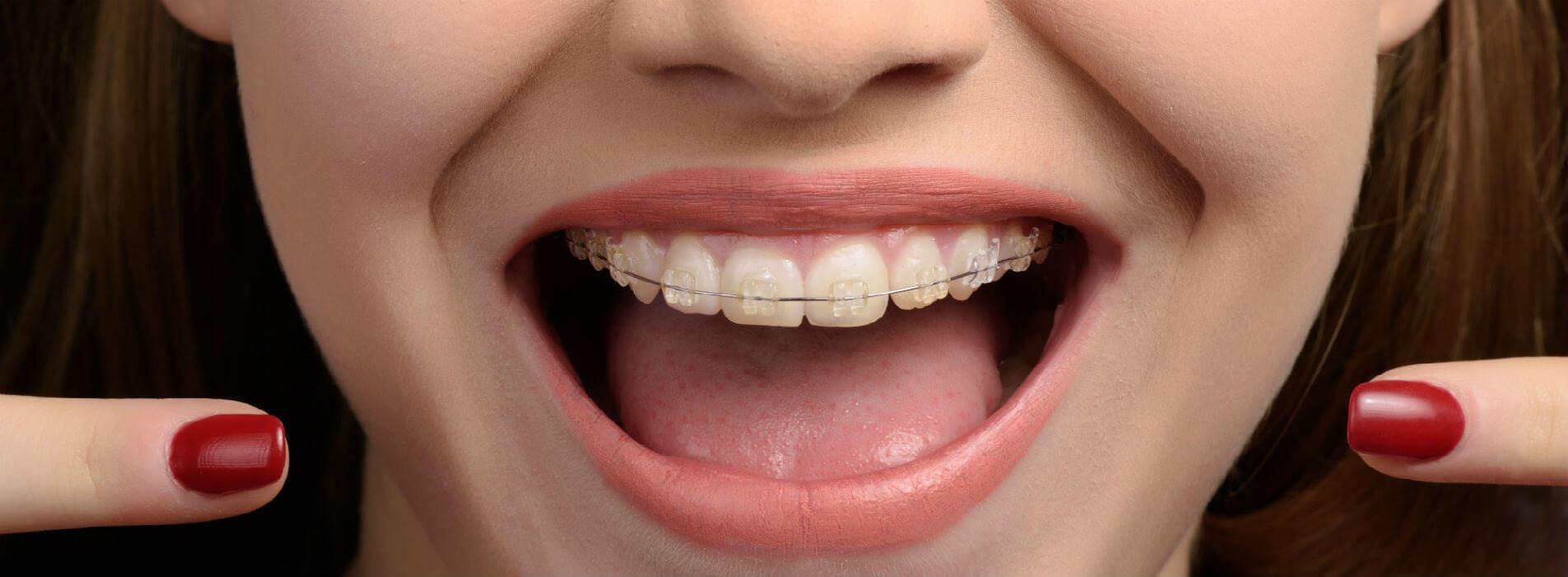 Brackets ortodoncistas ortodoncia