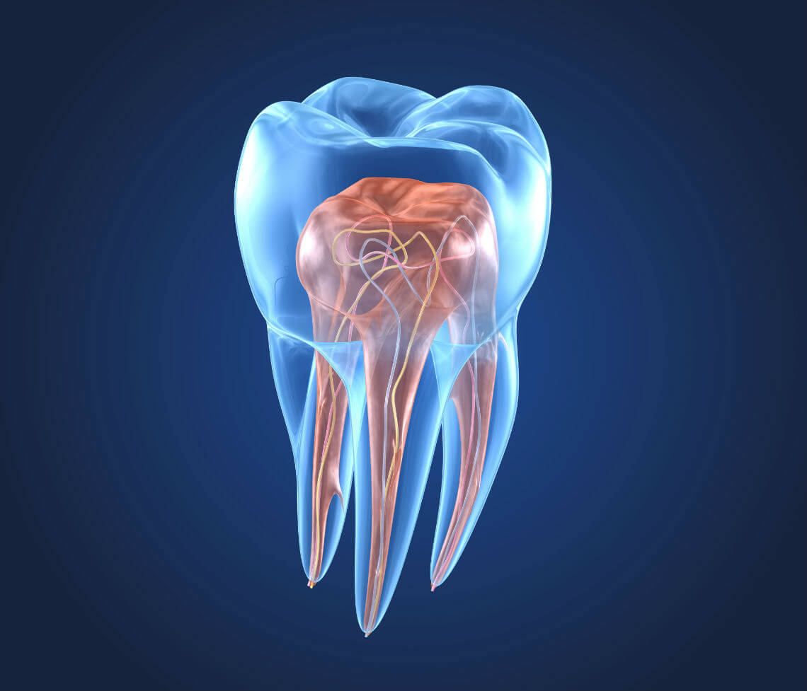 Extracción pulpa dental