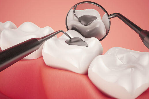 Servicio de empaste dental Madrid