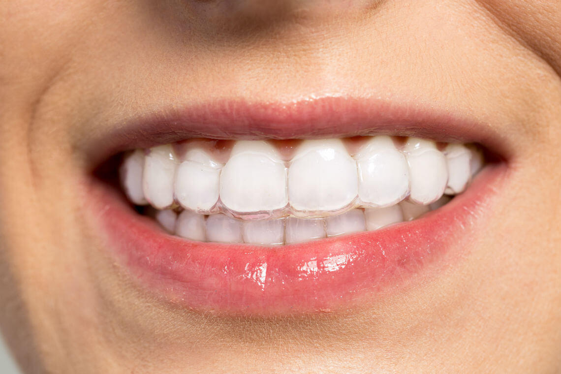 Foto ortodoncia invisible cómo queda