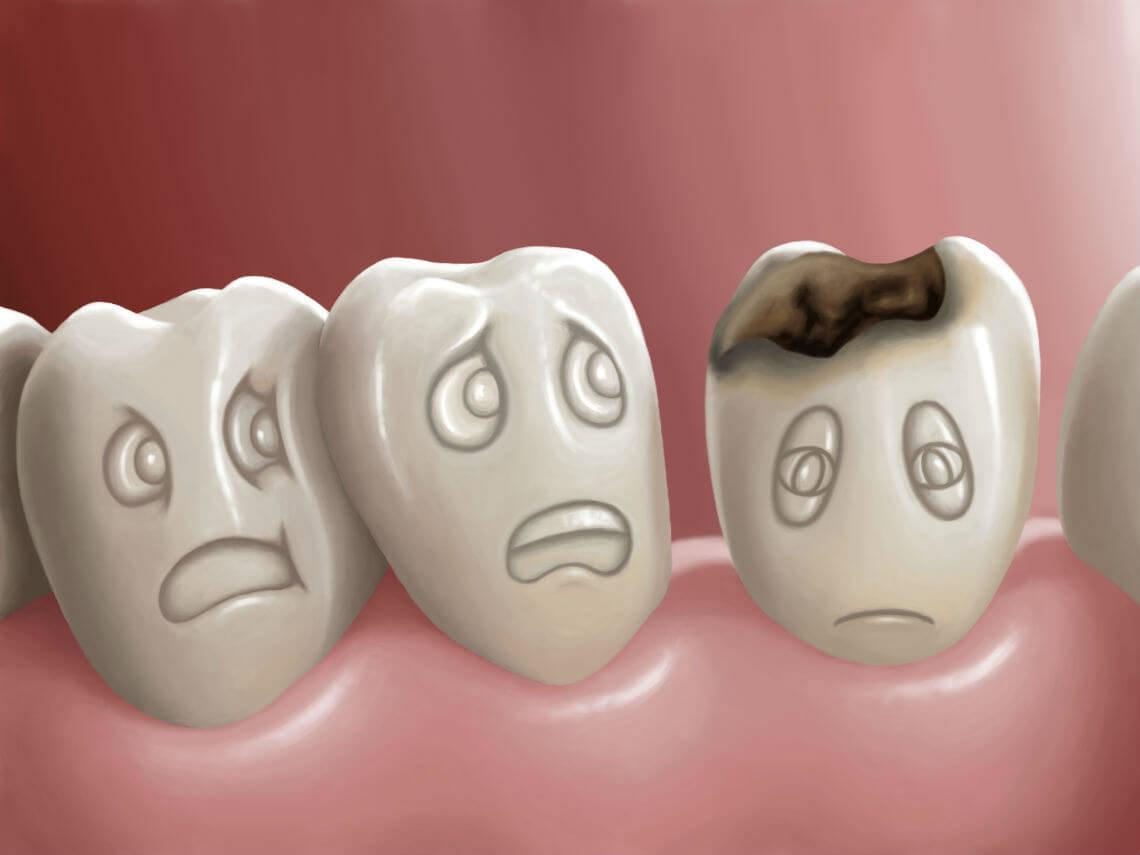 Lesiones dentales por medicamentos