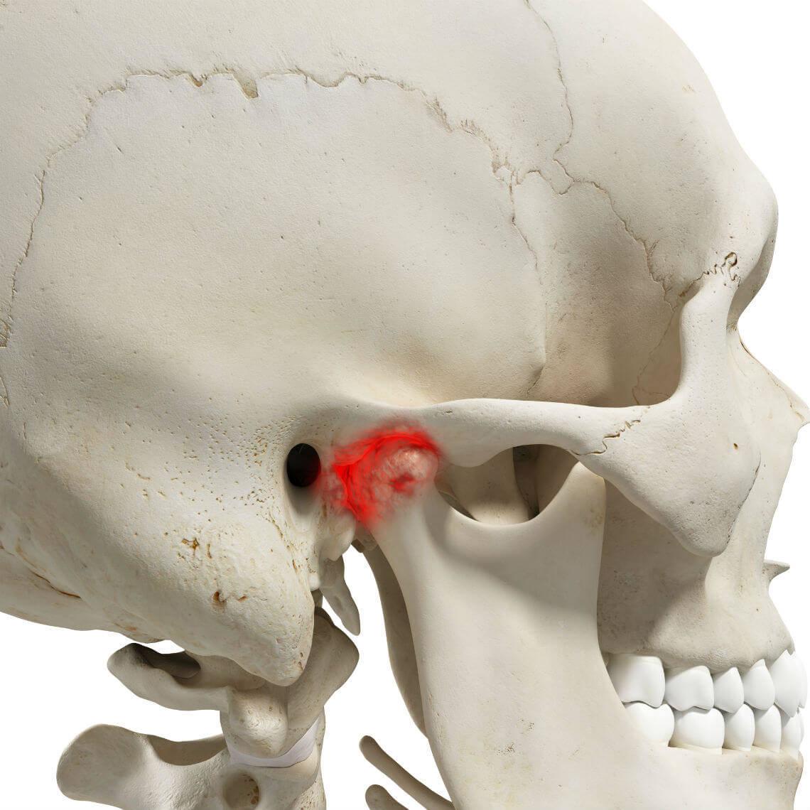 Desorden ATM trastorno temporomandibular artritis