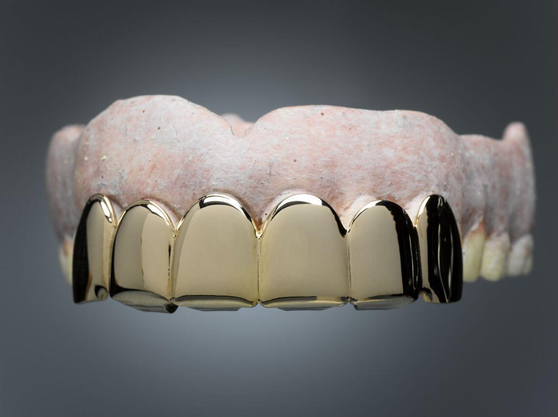 dientes de oro