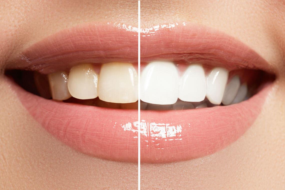 blanqueamiento dientes varios tonos