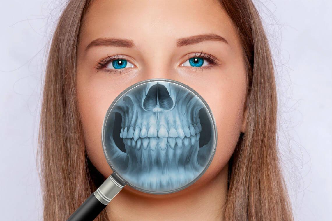 radiografia dientes
