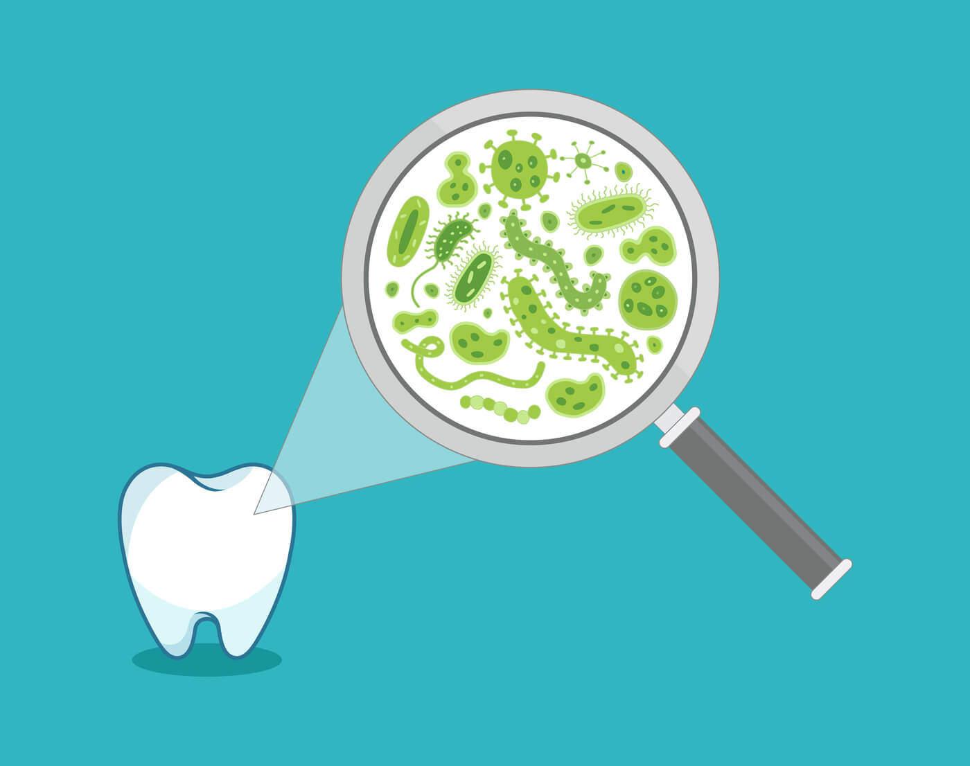 Diente en chip odontologia moderna