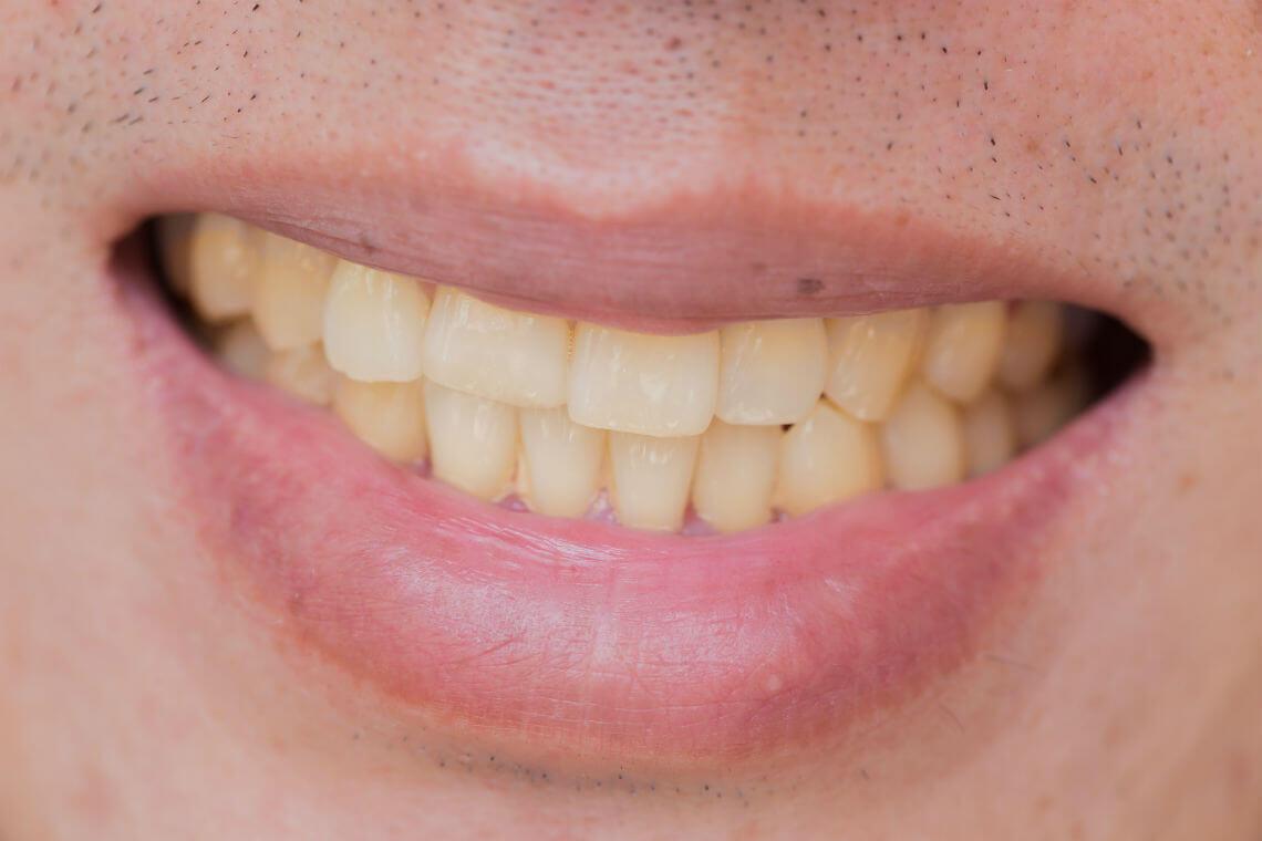tincion dientes tetraciclina