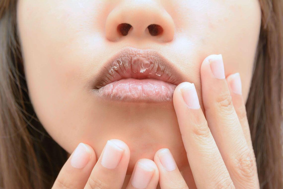 Mujer con labios secos