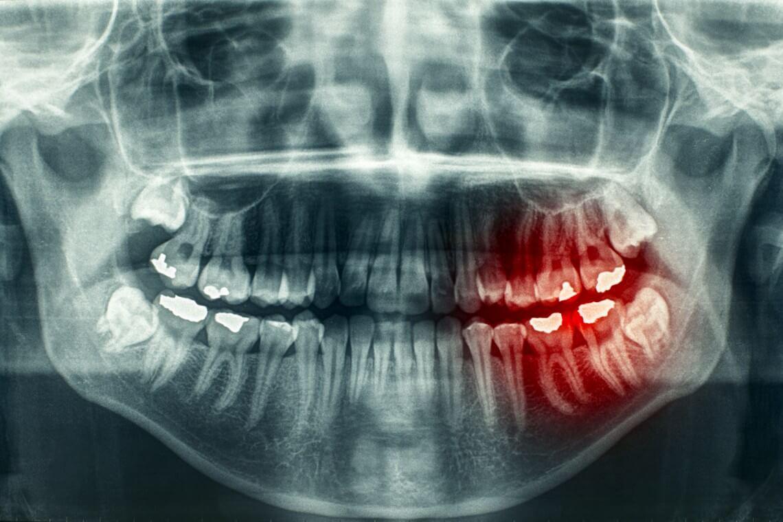 Radiografía algia zonas dolorosas