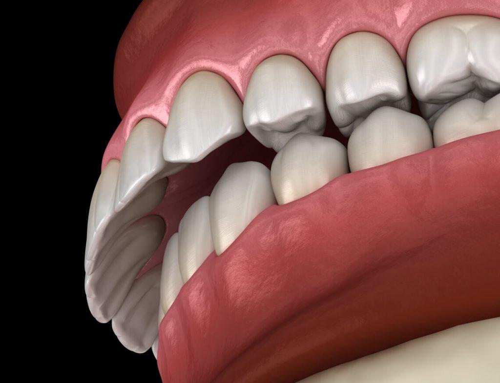 biprotrusión dentaria dientes salidos