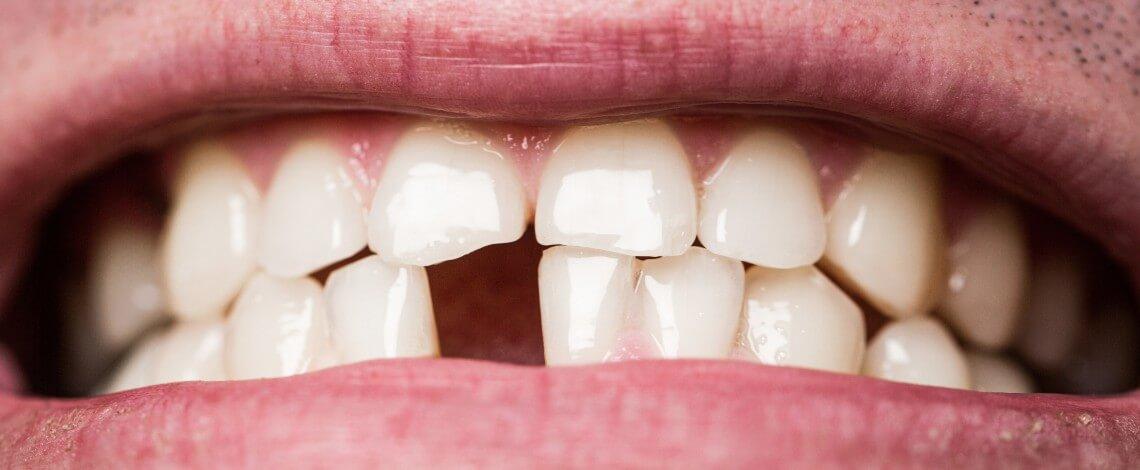 Edentulismo pérdida de dientes