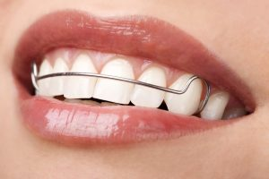 Hawley retenedor dental