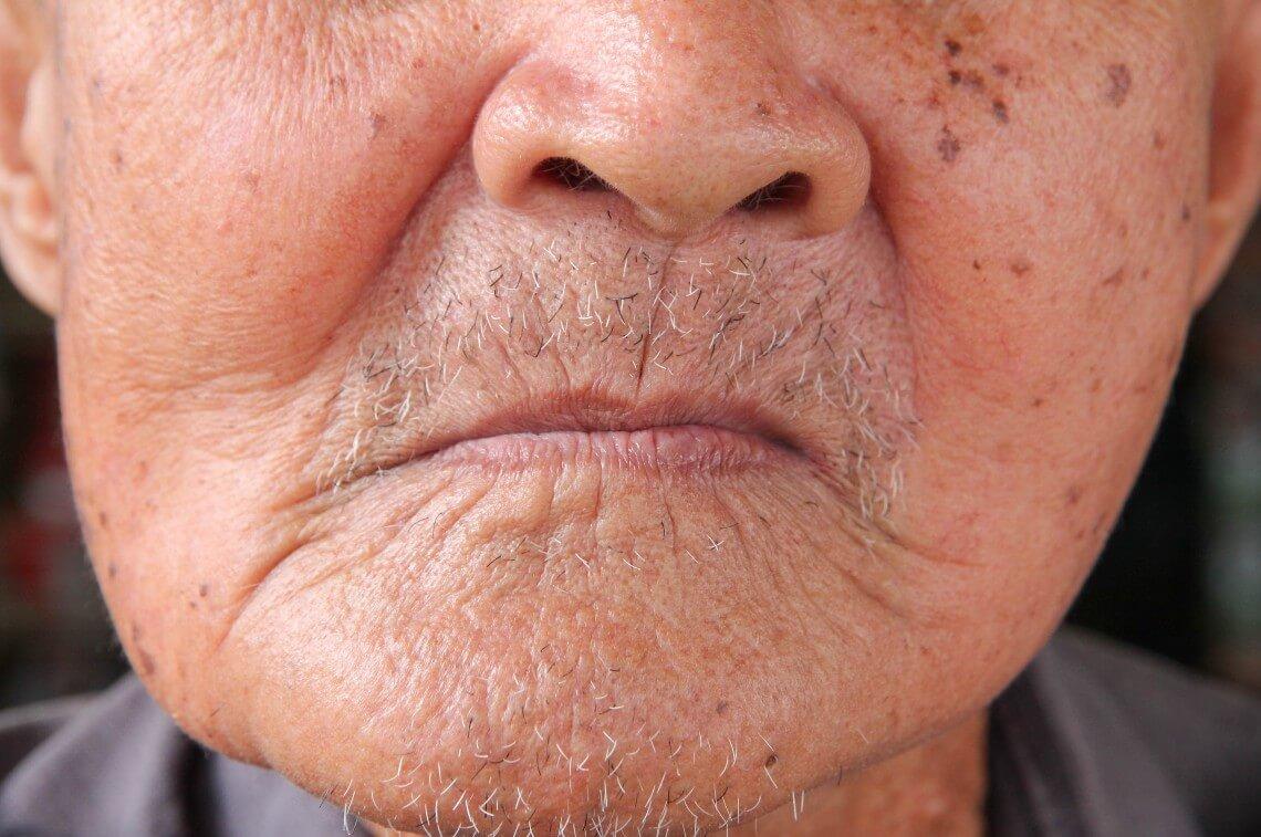 síndrome de kelly boca desdentada
