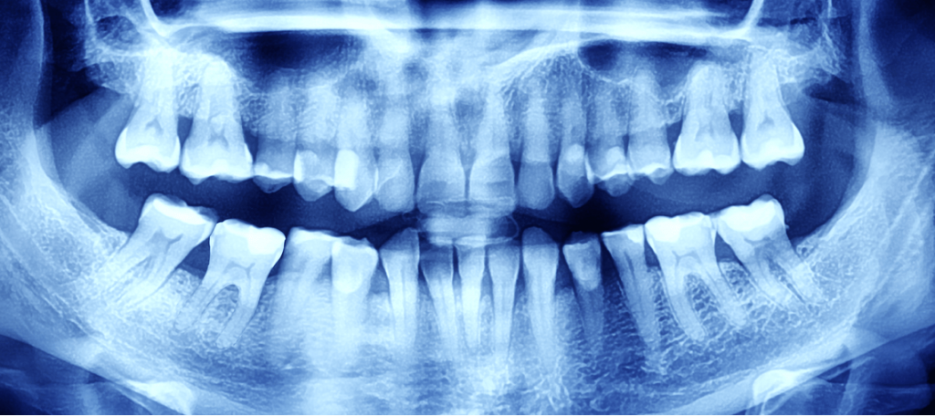 Radiografía dental