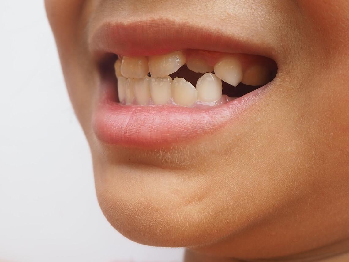Hiperdoncia dientes supernumerarios
