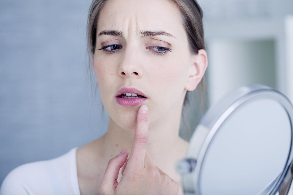 Queilitis angular boqueras