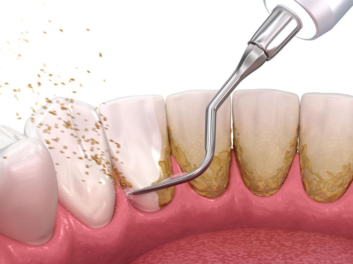 Higiene dental eliminar placa bacteriana