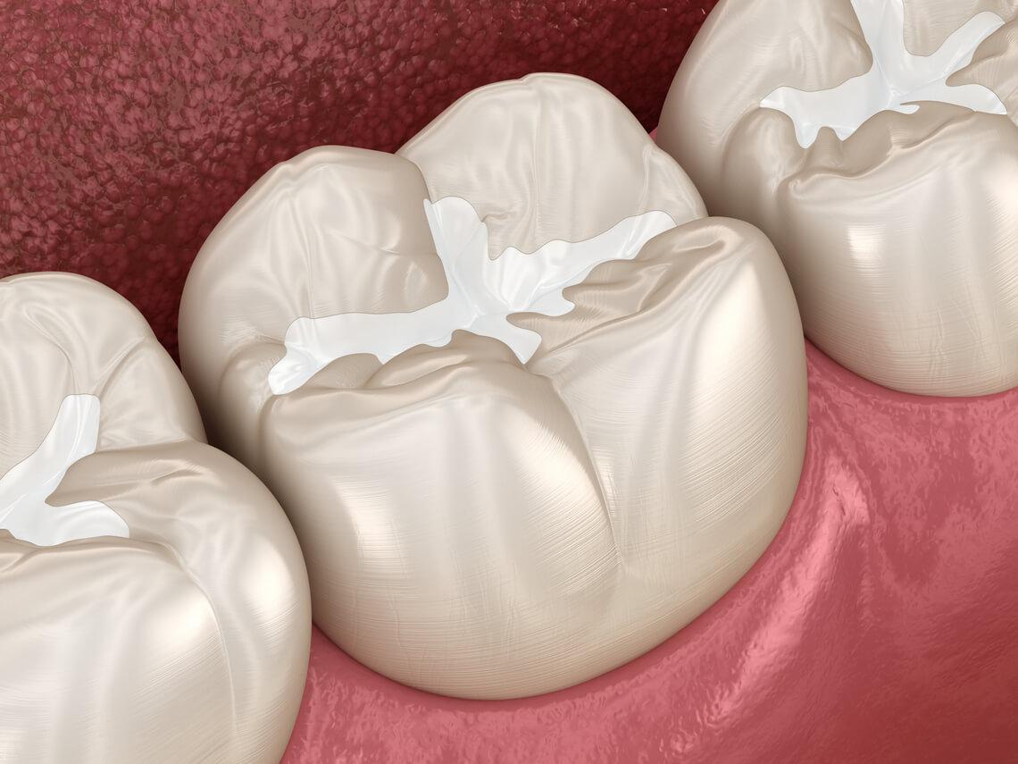 Selladores dentales
