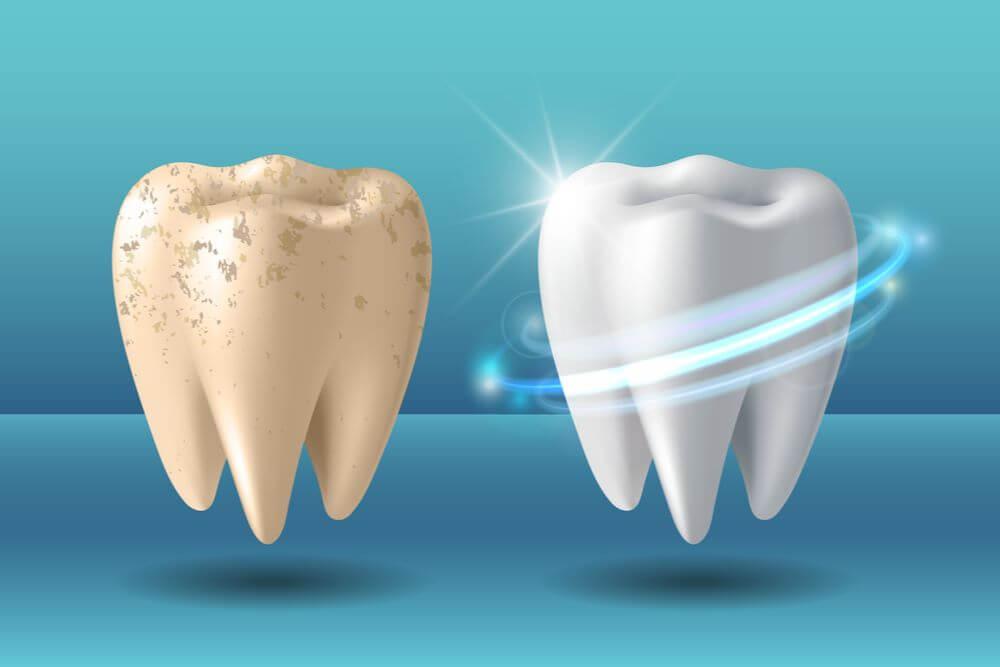 Blanqueamiento dental proceso