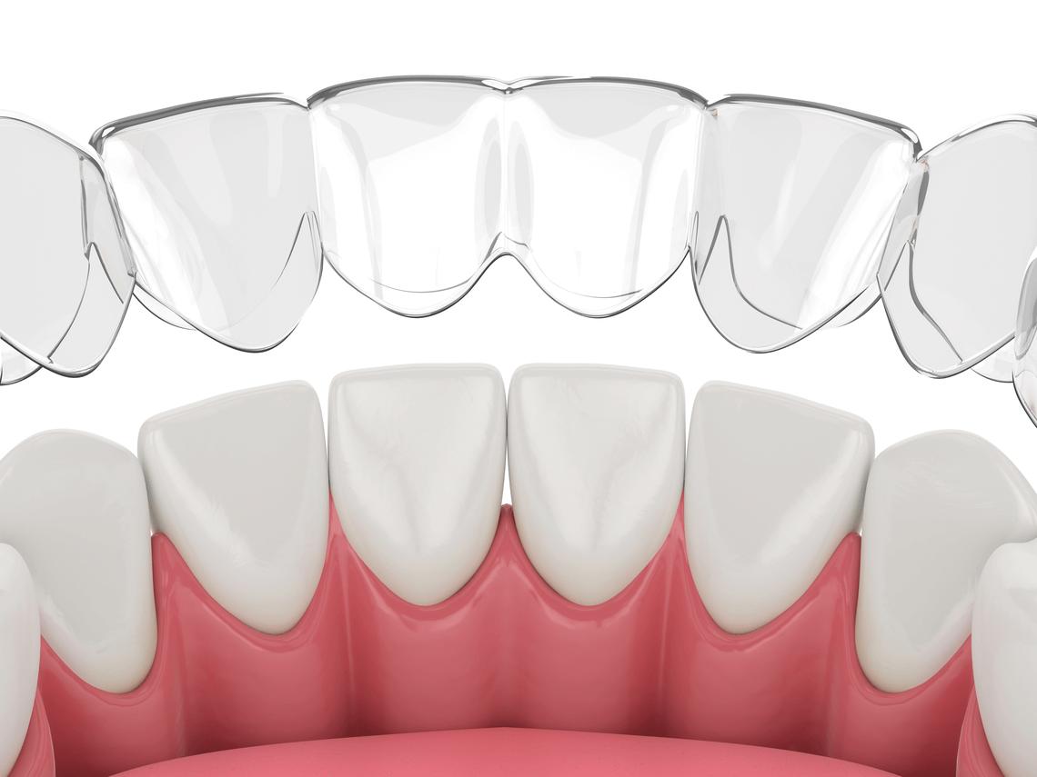 ortodoncias cuanto tardan en moverse los dientes