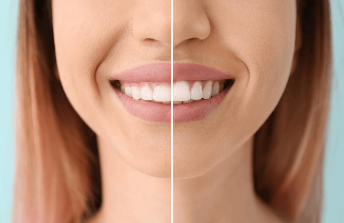 Gingivectomía estética sonrisa gingival