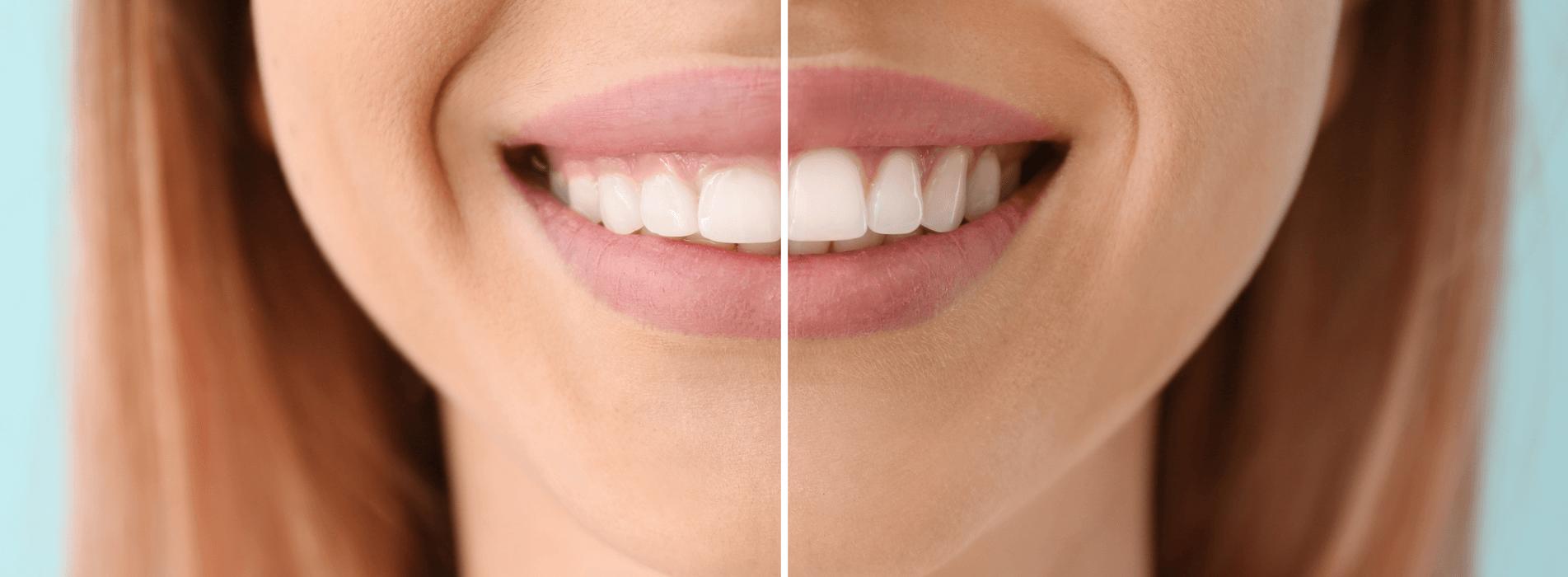 gingivectomía estética madrid