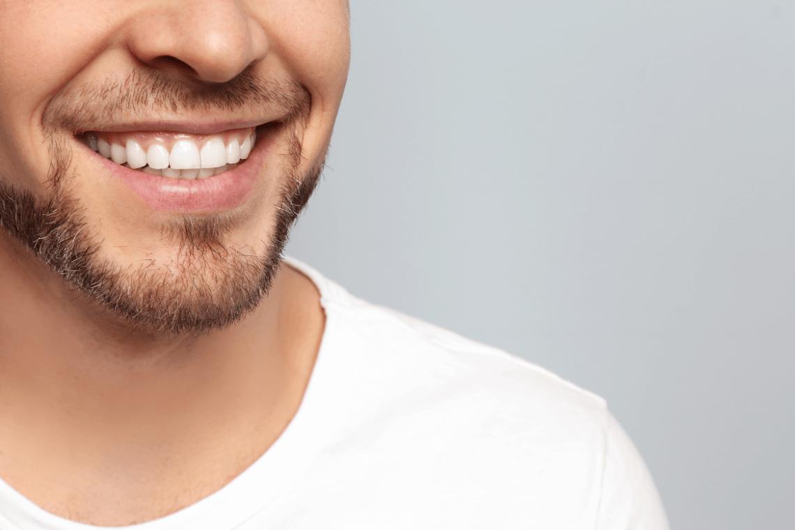 Microabrasión dental