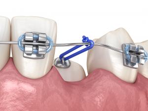 Fenestración dental